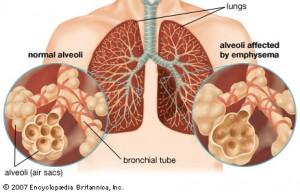 radang-paru